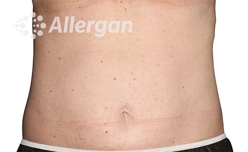 Female abdomen after CoolSculpting®   Meyer Clinic