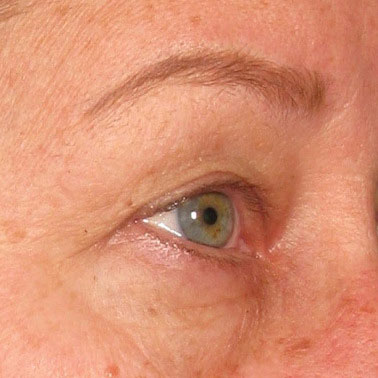 Brow after Ultherapy® | Meyer Clinic