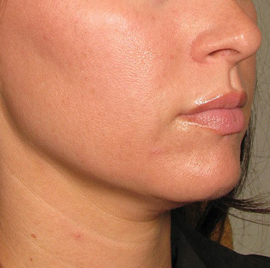 Chin after Ultherapy® | Meyer Clinic