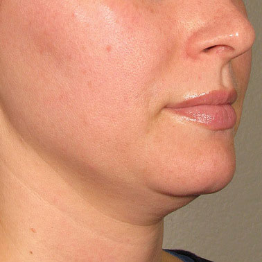 Chin before Ultherapy® | Meyer Clinic